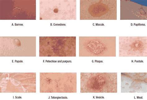 Breast cancer treatment pdqhealth professional jpg 600x408