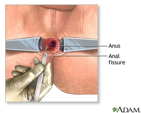 anal tear medical jpg 400x320