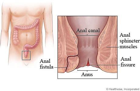anal tear medical jpg 460x300