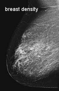 loss of breast tissue jpg 201x307